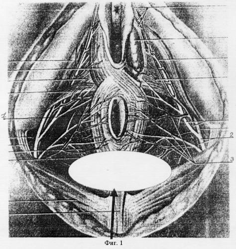 Нервы и анальные трещины