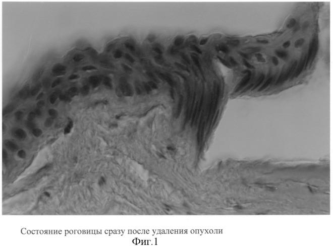 Способ удаления образований роговицы опухолевого и неопухолевого генеза