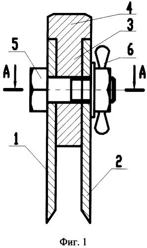 Резекциz суставных поверхностей каратэ травмы связок коленного сустава