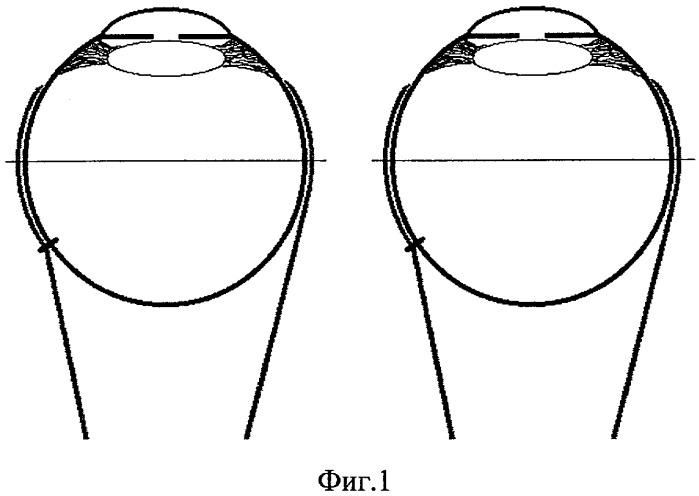 Способ хирургического лечения горизонтального толчкообразного нистагма
