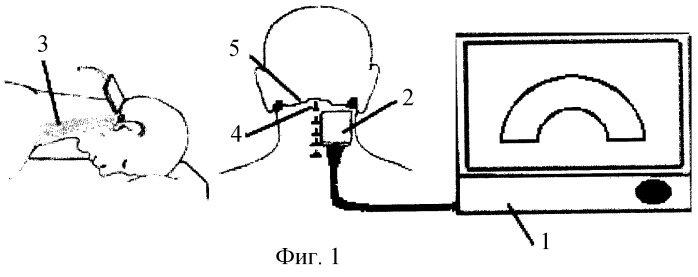 The Method For Determining The Blood Flow In The V3 Segment Of The