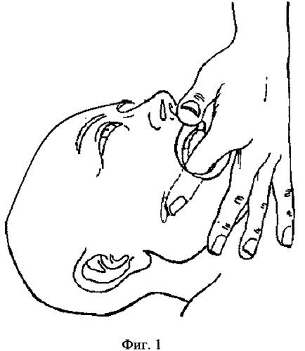 Способ лечения синдрома дисфункции височно-нижнечелюстного сустава