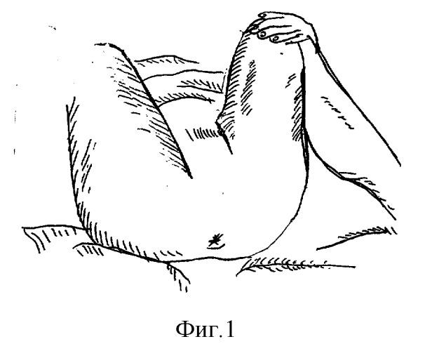 Левашов лечение варикоза