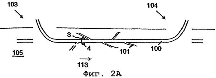 Электрохирургический венозный стриппер (варианты)