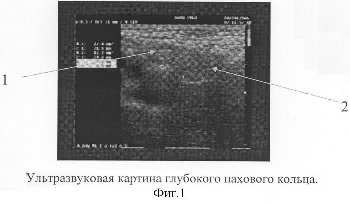 Способ определения показаний к выбору метода оперативного лечения паховых грыж у детей