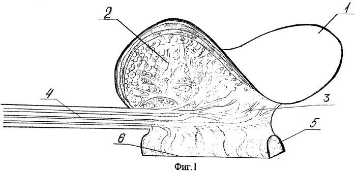 Способ формирования фронтального отдела верхней челюсти, верхней губы, преддверия полости рта и твердого неба