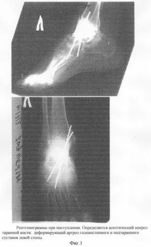 Способ оперативного лечения многооскольчатых переломов и переломовывихов таранной кости
