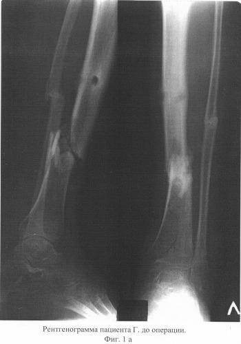 Клиники по лечению суставов остеомиелит кожные наросты на суставах пальцев рук