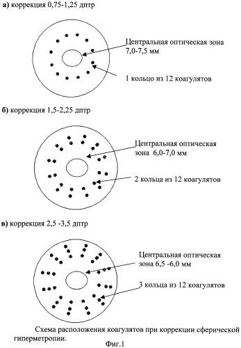 Таблица для проверки зрения дальнозоркость