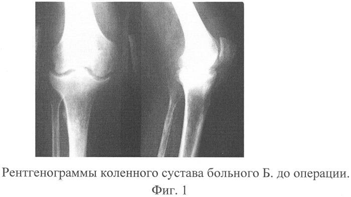 Дифференциальная диагностика поражения суставов