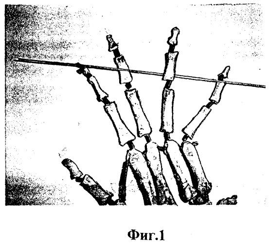 Разрыв разгибателя на уровне дистального межфалангового сустава вторичный деформирующий остеоартроз височно-нижнечелюстного сустава