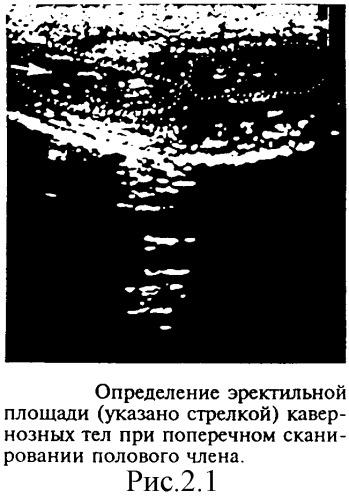 urolog-dlya-povisheniya-potentsii