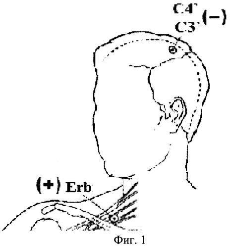 Способ диагностики формирования посттравматического вегетативного статуса у больных с тяжелой черепно-мозговой травмой