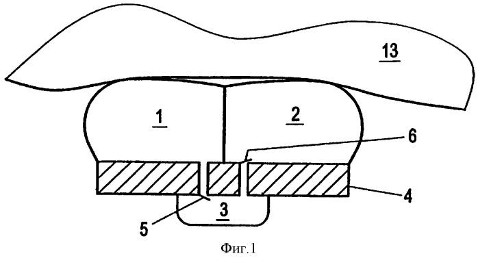 Регулируемый желудочный бандаж (варианты)