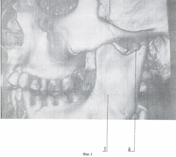Перелом суставной головки нижней челюсти сустава височно-нижнечелюстных суставов лечение