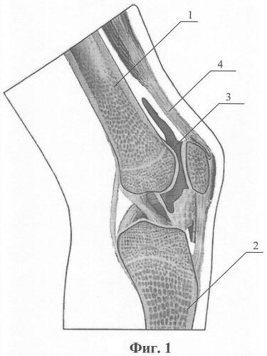 Редрессация сустава узи суставов угол альфа нормы