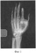 Спосіб виготовлення імплантату для пластики дефектів кісткової тканини