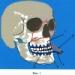 Пристрій для лікування переломів середньої зони обличчя і спосіб його застосування