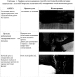 Спосіб системної реабілітації пацієнтів з плегией в області передпліччя і кисті