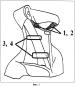 Спосіб лікування пацієнтів зі стійкими функціональними порушеннями голосу