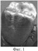 Спосіб виготовлення металокерамічних зубних протезів