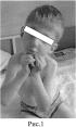 Спосіб лікування вродженої розгинальної контрактури променево-зап'ясткового суглоба у поєднанні зі згинальними контрактурами і ульнарной девіацією трехфалангових пальців на рівні п'ястно-фалангових суглобів у дітей з артрогрипозом